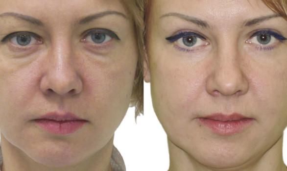 Пластика верхних и нижних век у женщины: фото до и после — через 6 месяцев