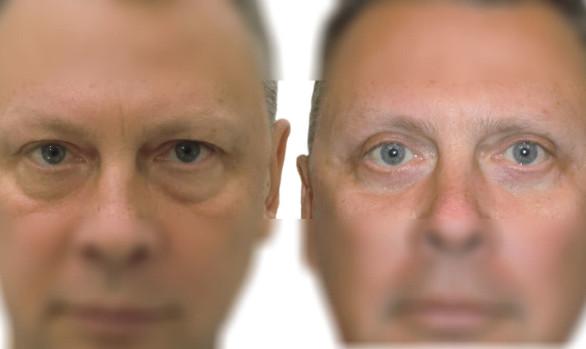 Пластика верхних и нижних век у мужчины: фото до и после — через 4 месяца