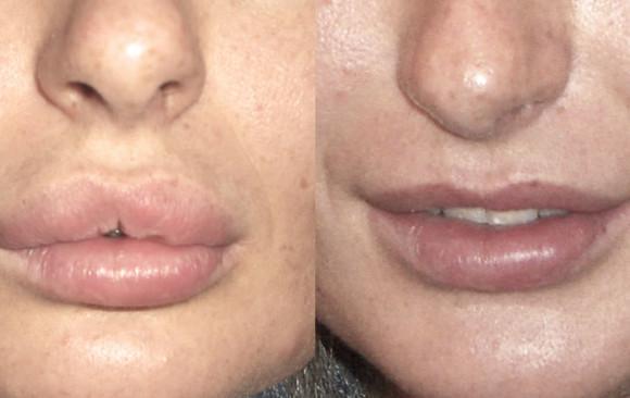 Удаление биополимерного геля из губ: фото до и после — через 1 месяц