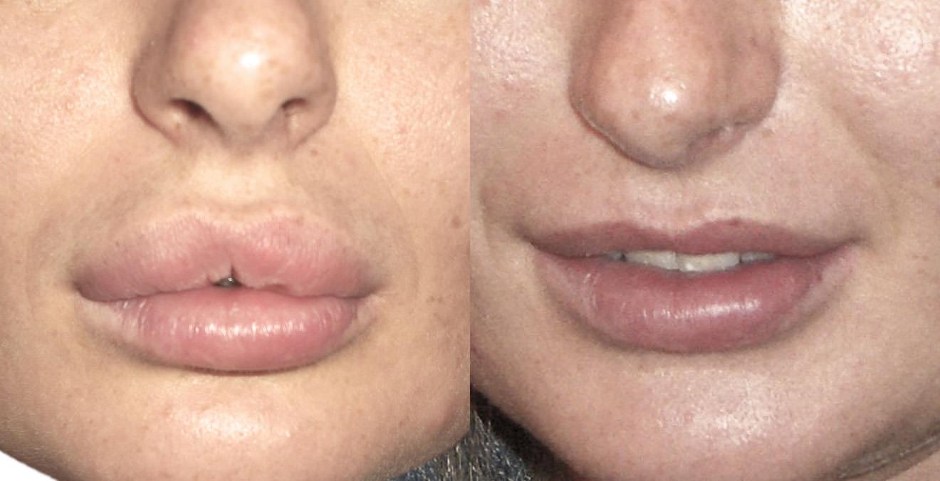Зуд и увеличение малых губ что это