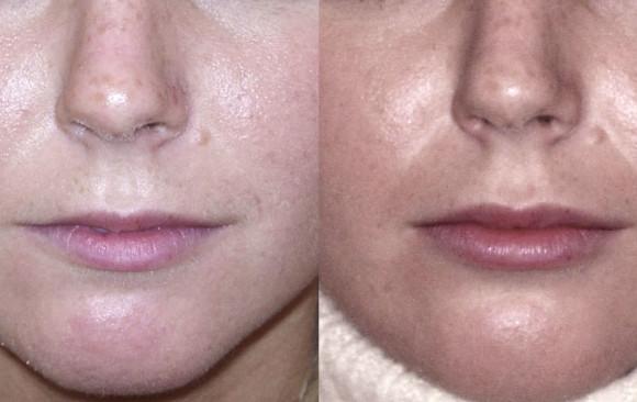 Увеличение губ гиалуроновой кислотой: до и после — через 2 недели