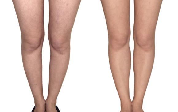 Увеличение голеней: фото до и после — через 1,5 месяца