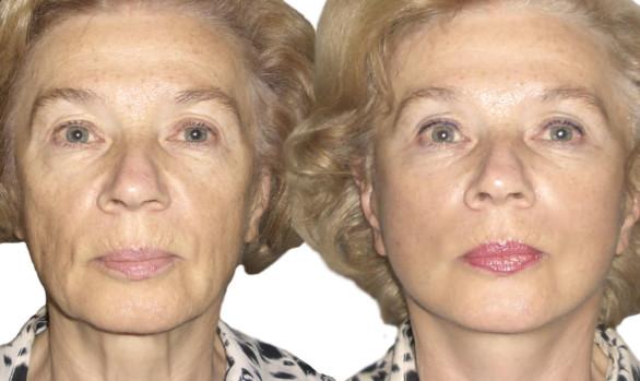 Подтяжка лица: фото до и после — через 1 месяц