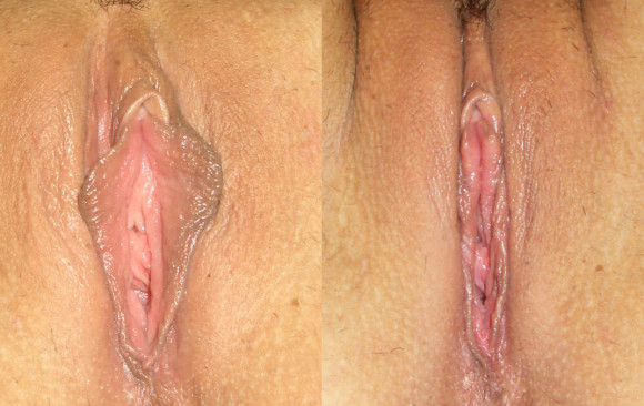 Уменьшение малых половых губ: фото до и после