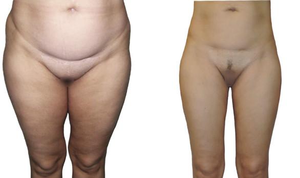 Липосакция бедер, живота, талии и колен: фото до и после — через 7 месяцев