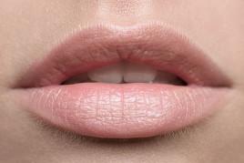 Пластика губ (хейлопластика)