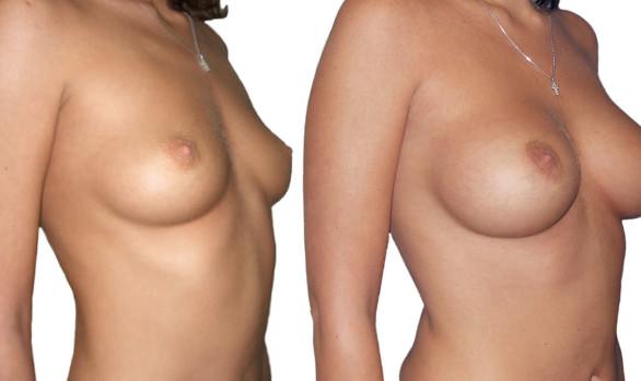 Увеличению объёма груди: фото до и после — через 4 года