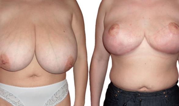 Уменьшение и подтяжка груди: фото до и после — через 7 месяцев