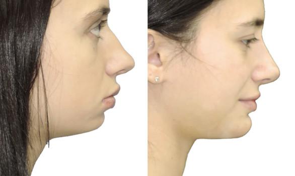 Пластика подбородка с имплантом: фото до и после — через 1 месяц