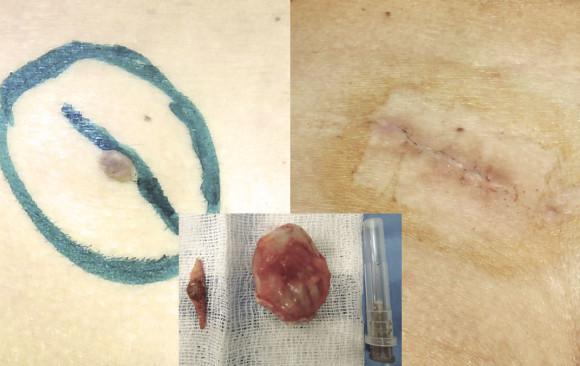 Удаление атеромы: фото до и после — через 2 недели