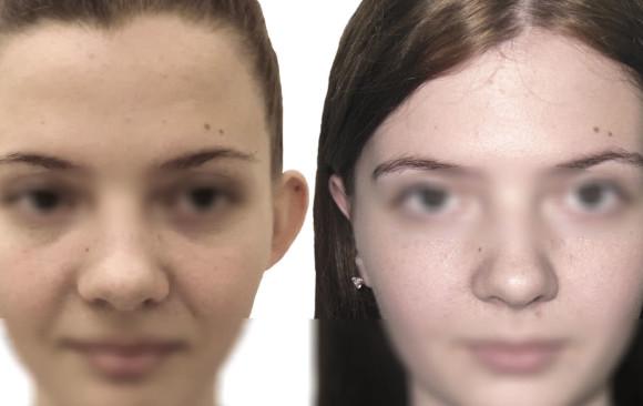 Пластика ушей: фото до и после — через 2 месяца