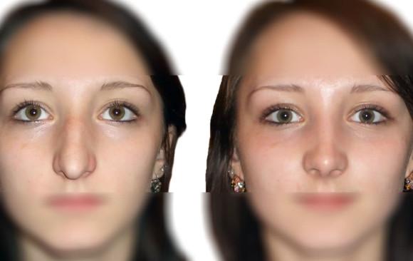 Пластика носа: фото до и после — через 2 месяца